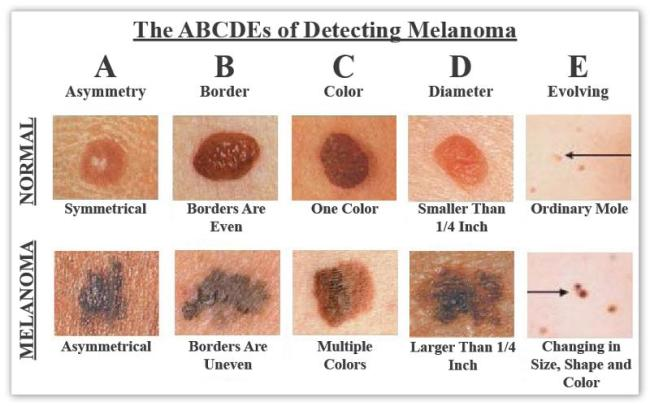 Melanoma New Orleans LA - Dr Mary Lupo