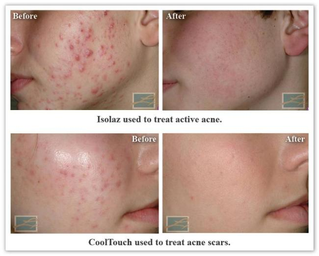 Acne New Orleans La- Dr Mary Lupo