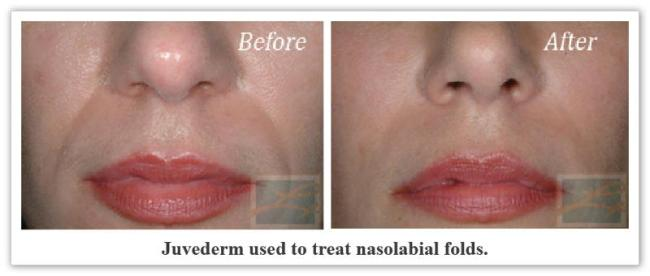 Juvederm New Orleans LA - Dr Mary Lupo