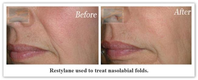 Restylane New Orleans LA - Dr Mary Lupo