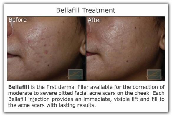 Dr. Lupo_Bellafill treatment_11-18-15