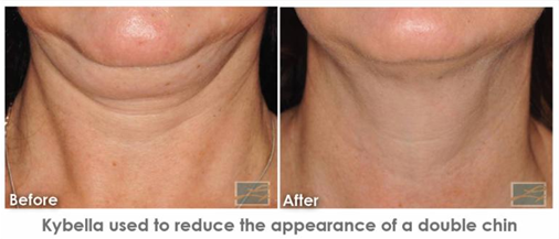 Lose Double Chin and Smooth Wrinkles with Double Savings.