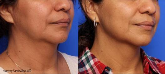 Before and After Inifin Procedure Dr Lupo