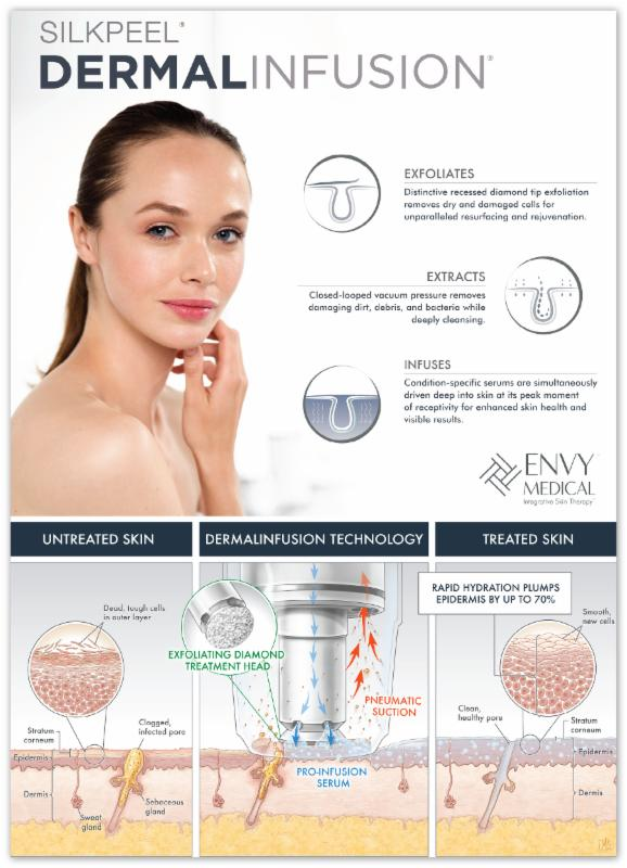 Dr Lupo SilkPeel Dermal Infusion