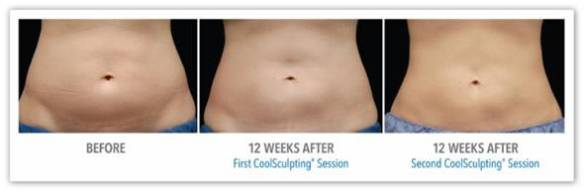 CoolSculpting for Fat Reduction - Before After Results 4