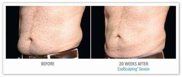 CoolSculpting for Fat Reduction - Before After Results 1