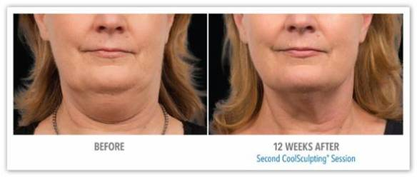 CoolSculpting for Fat Reduction - Before After Results 2