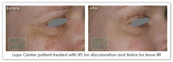 IPL Skin Rejuvenation  - Before After Results 1