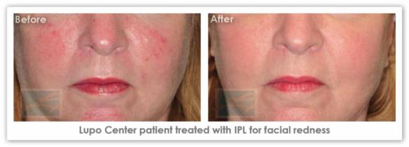 IPL Skin Rejuvenation  - Before After Results 2