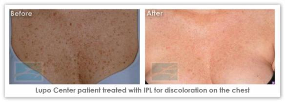 IPL Skin Rejuvenation  - Before After Results 3