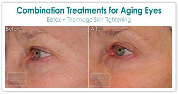 Combination eye for Aging Treatment