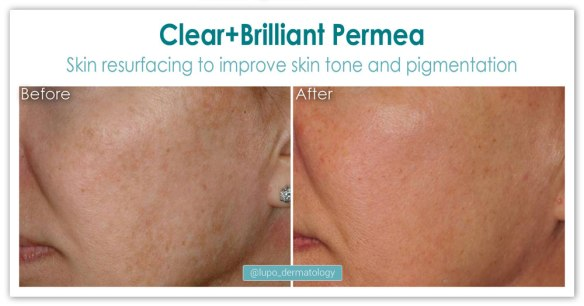 ClearBrilliant Permea before and after