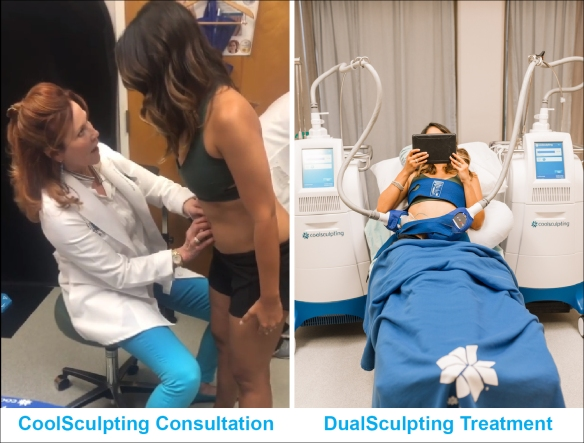 Experiences with CoolSculpting