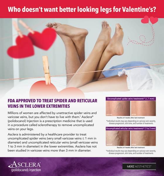 Say Bye Bye to Unwanted Leg Veins