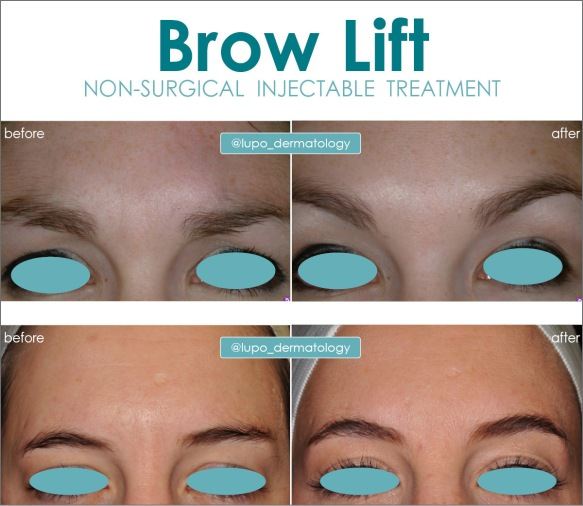 Brow Lift Before and After