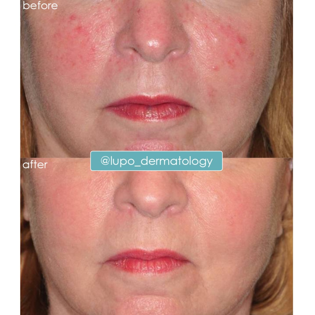 Rosacea Before & After Results